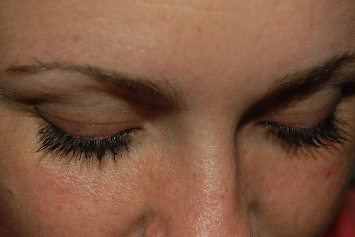 65d38d6952c Where did you get those lashes? The Latisse Challenge - Dr. Rupa