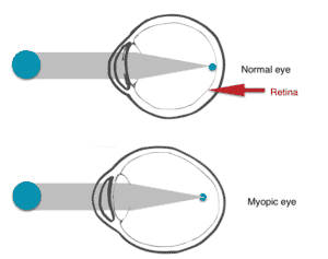 Myopic eye diagram
