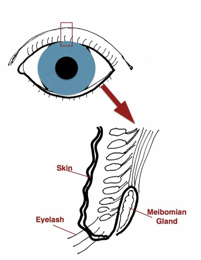 Meibomian gland picture jpeg
